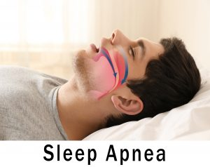 Snoring man with animation of airway